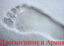 плоскостопие в Петрозаводске